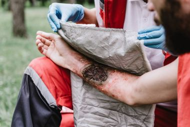 woman doing First aid paramedic in training, treating third degree burns