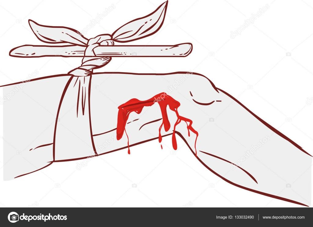 stoppt den Blutfluss am Bein mit einem Stück Holz durch die ...