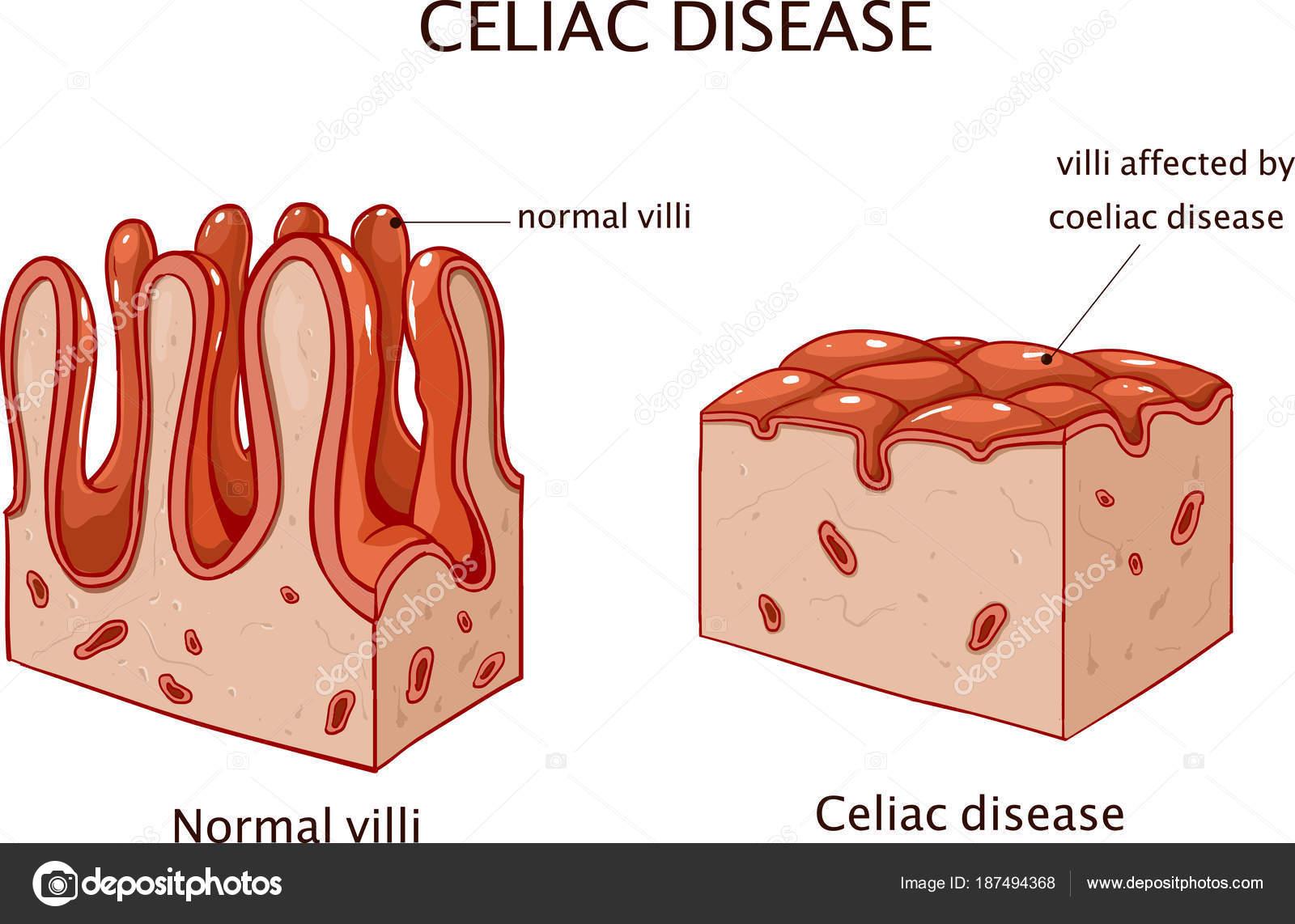 coeliac disease celiac disease small bowel showing coeliac disease Celiac Disease Histology