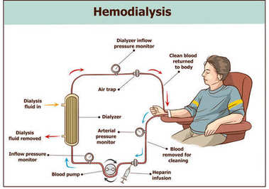 Hemodialysis procedure. Used for the renal insufficiency.