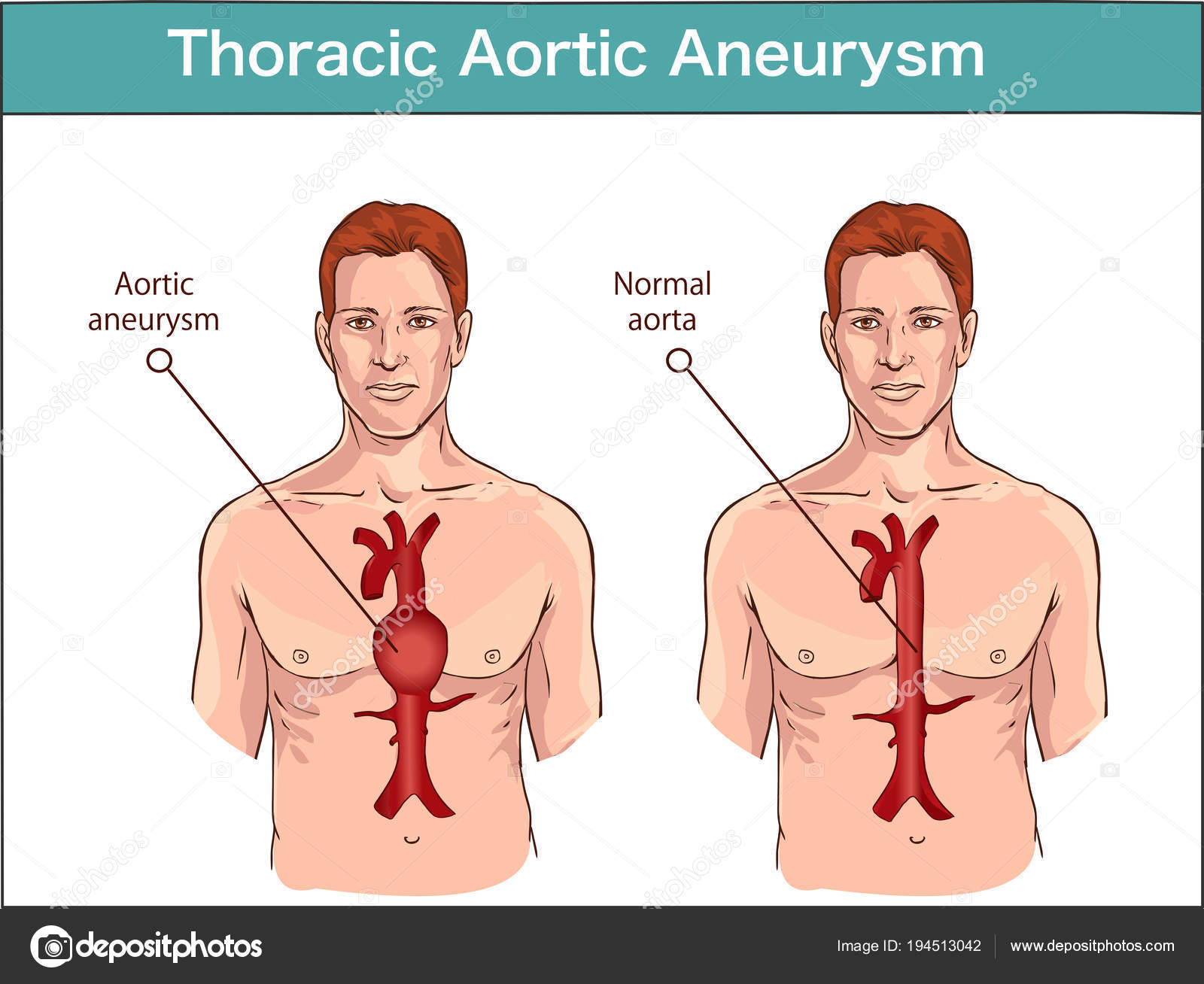 Tipos de aneurisma aórtico abdominal. aorta normal y ve ampliada ...