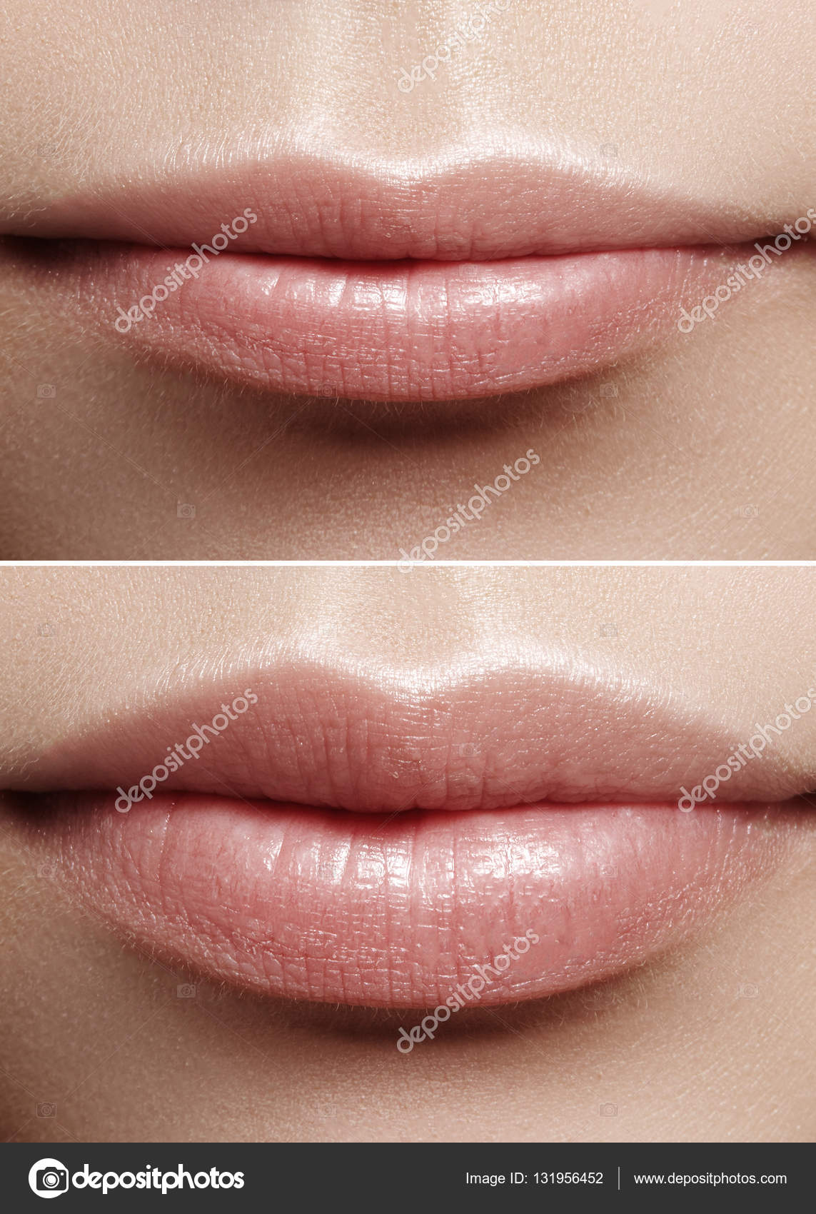 Before and after lips filler injections  Beauty plastic  Beautiful