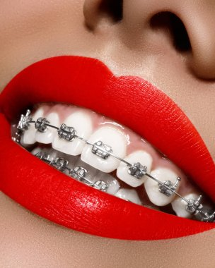 White teeth with braces. Dental care photo. Woman smile with ortodontic accessories, bright lips. Orthodontics treatment