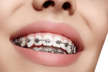 Beautiful white teeth with braces. Dental care photo. Woman smile with ortodontic accessories. Orthodontics treatment