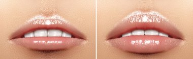 Before and after lips filler injections. Beauty plastic. Beautiful perfect lips with natural makeup.