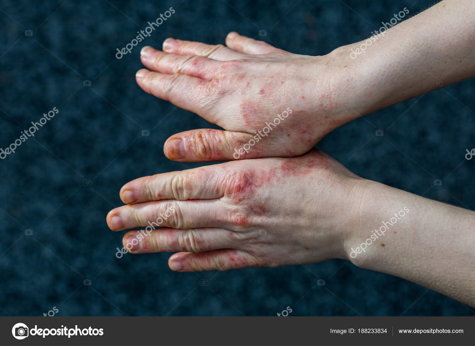 Photos: dyshidrosis | Hands with dry and stressed red