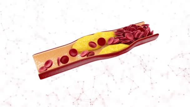 Blutzellen mit Plaque Aufbau von Cholesterin isoliert weiß