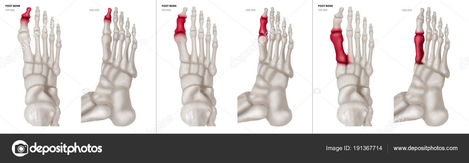 X-ray collection of Big toe foot bone with red highlights on ...