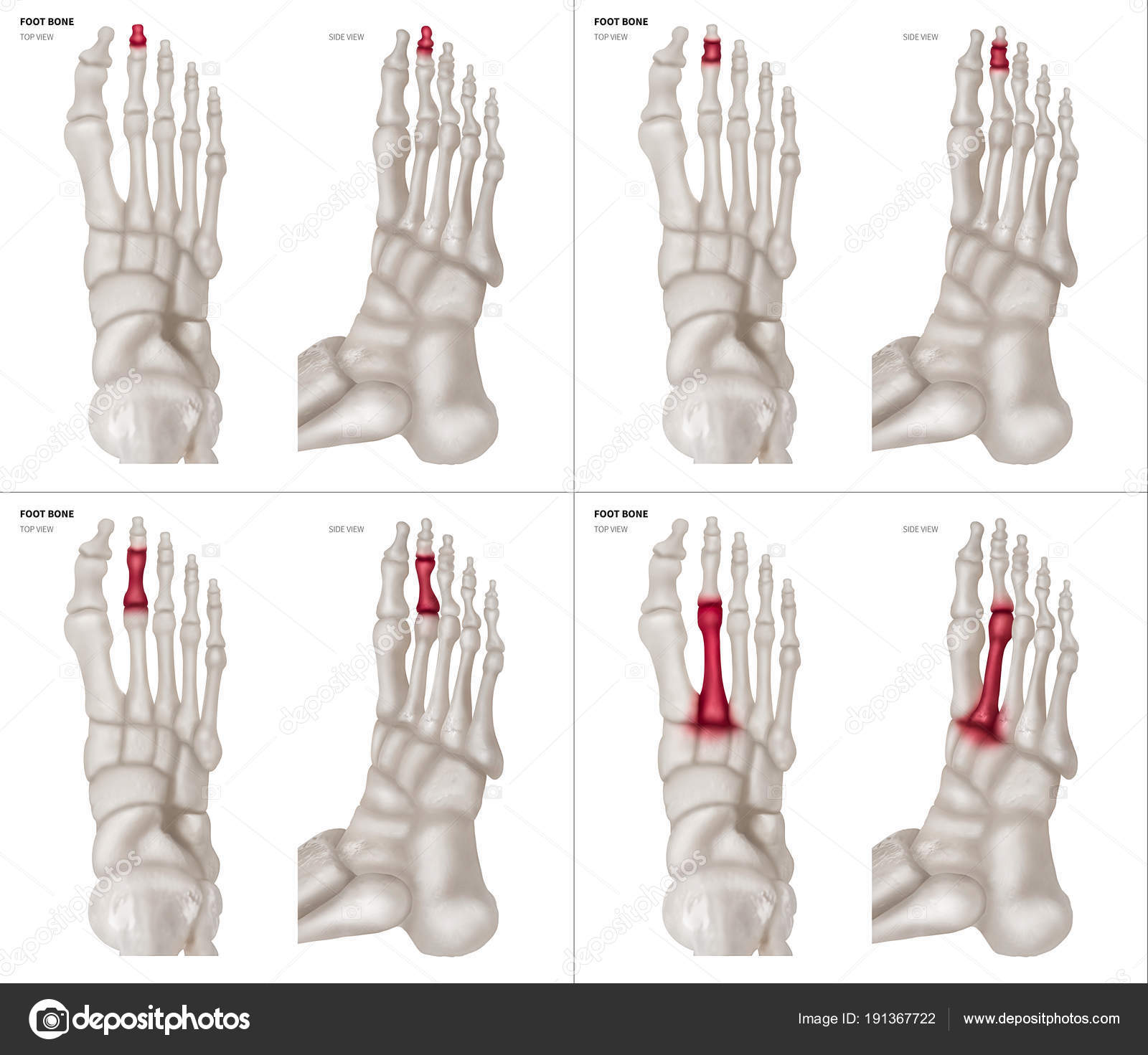 X-ray collection of Long toe foot bone with red highlights on ...