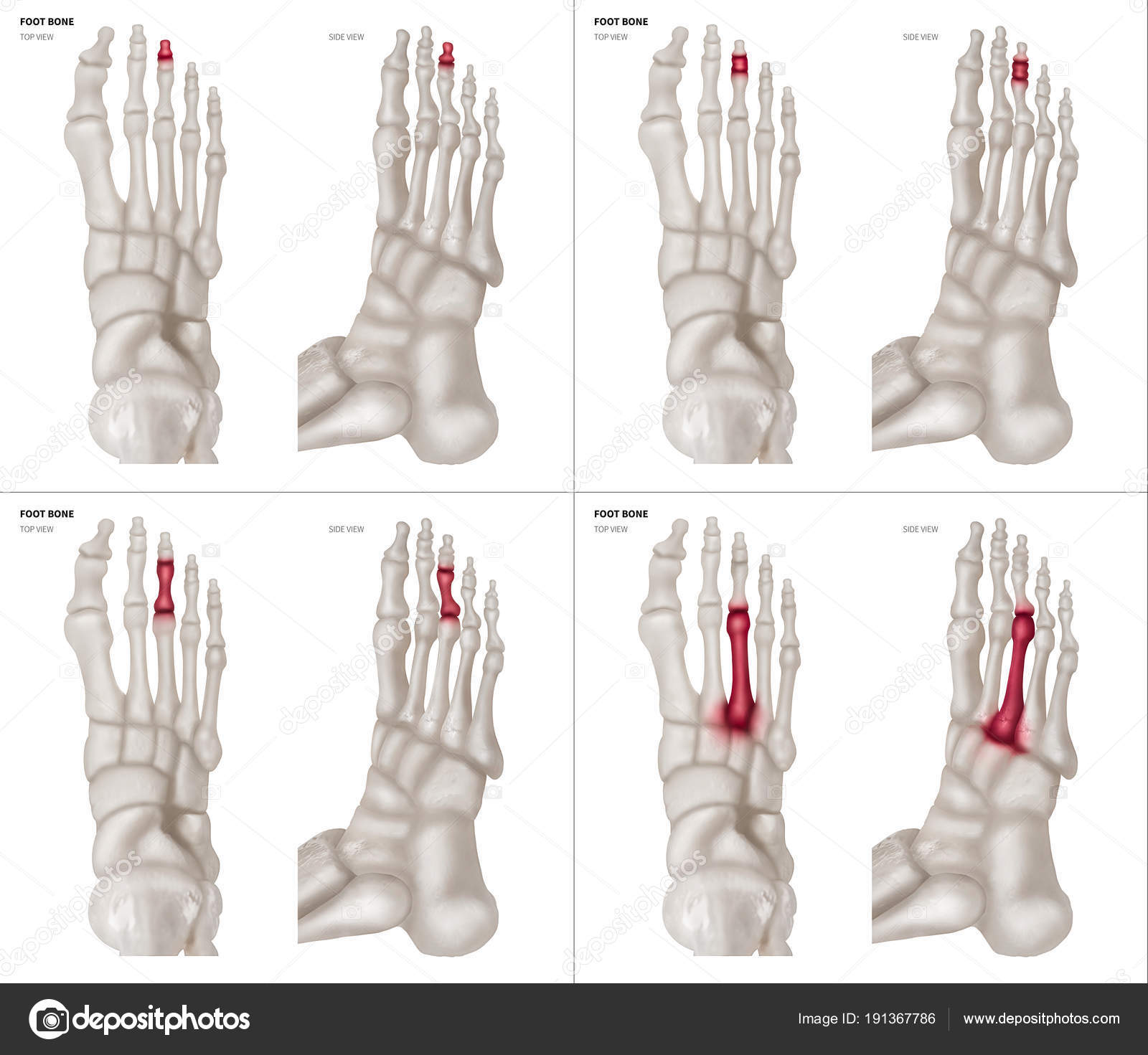 X-ray collection of Middle toe foot bone with red highlights on ...