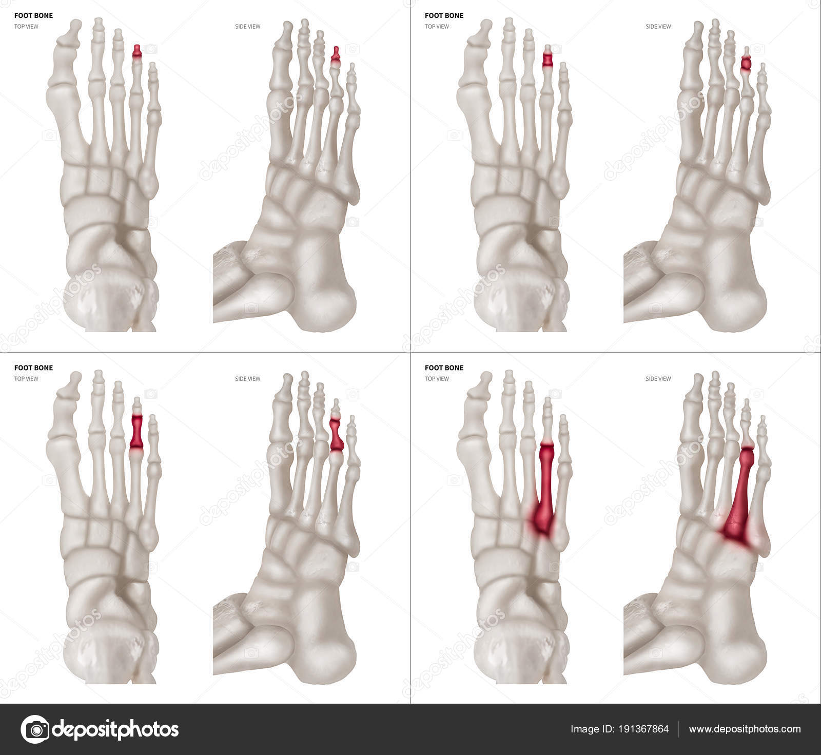 X-ray collection of Ring toe foot bone with red highlights on ...