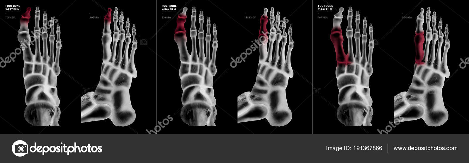 X-ray film collection of Big toe foot bone with red highlights on ...