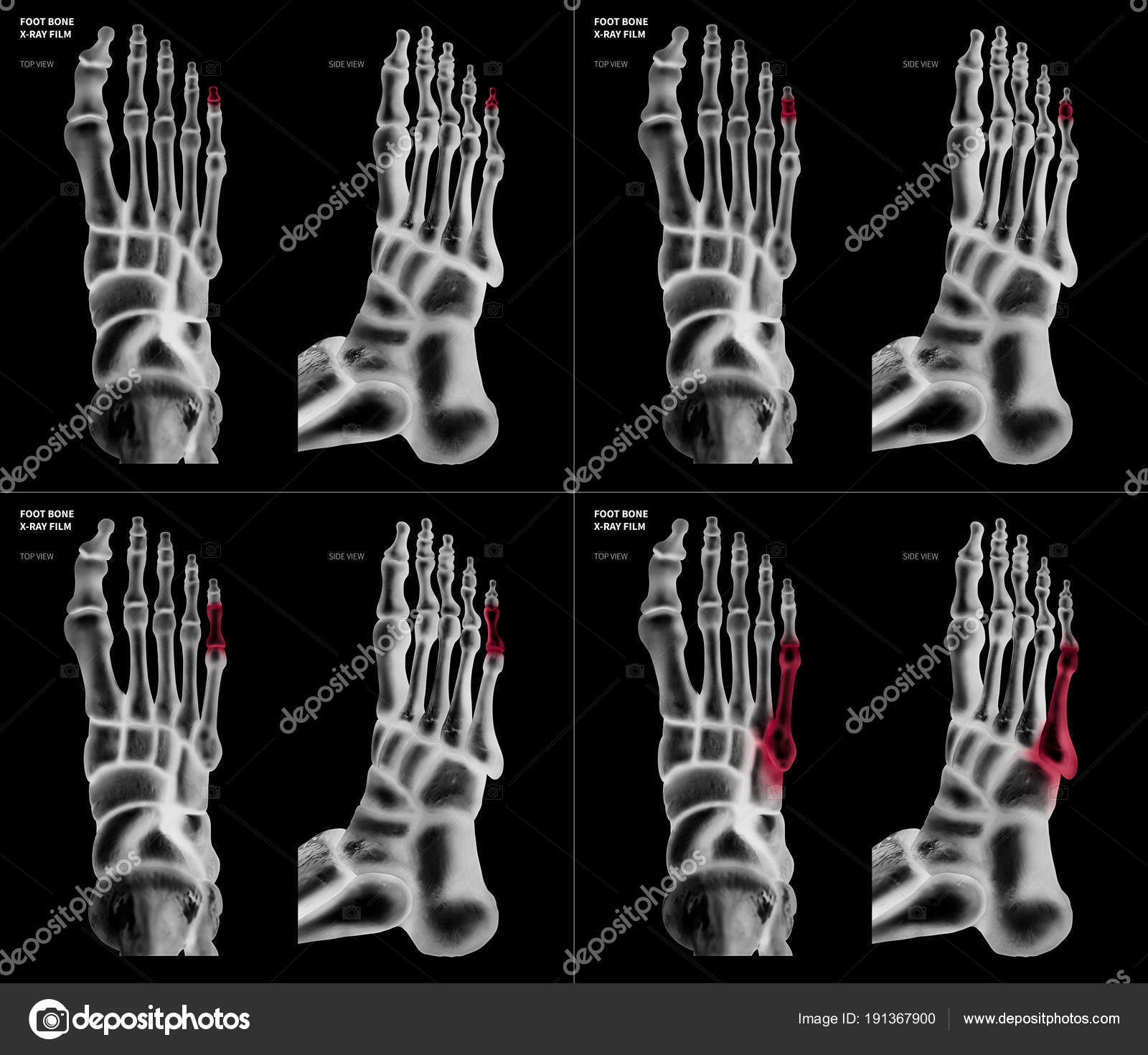 X-ray film collection of Little toe foot bone with red highlights on ...
