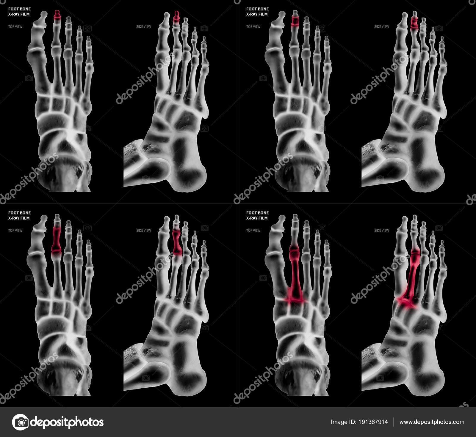 Colección de películas de rayos x del dedo del pie largo pie hueso ...