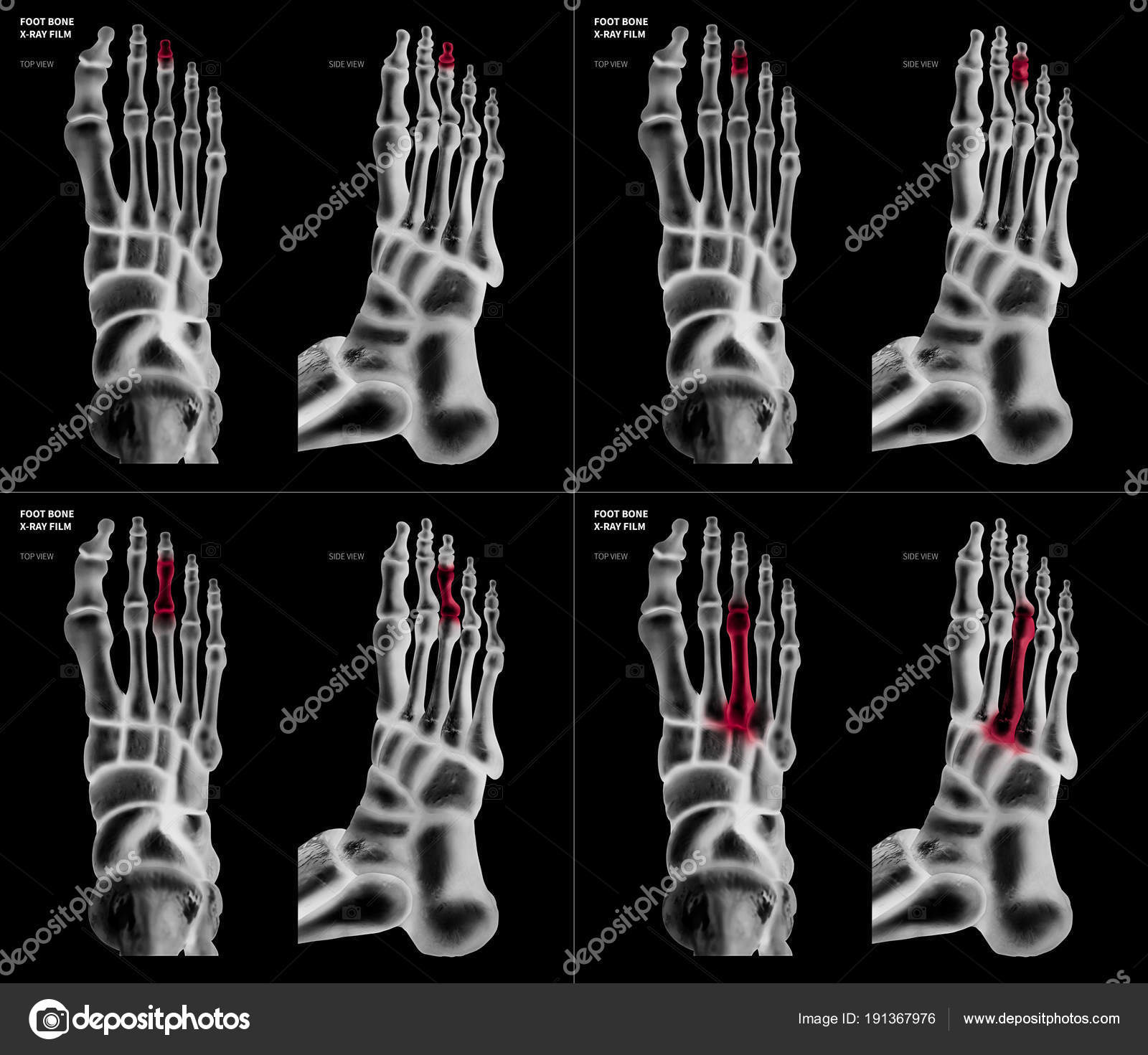X-ray film collection of Middle toe foot bone with red highlights on ...