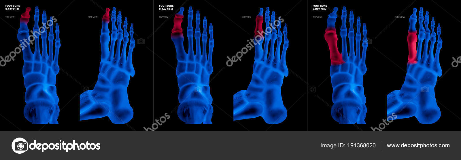 X-ray blue film collection of Big toe foot bone with red highlights ...