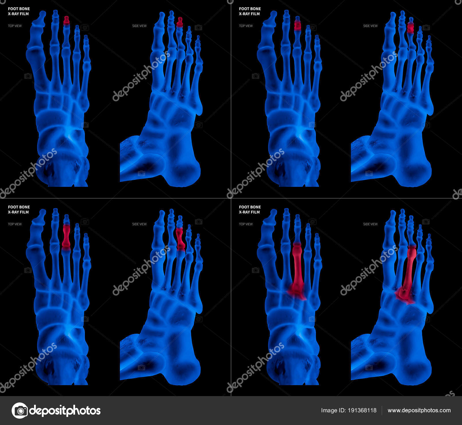 X-ray blue film collection of Middle toe foot bone with red ...