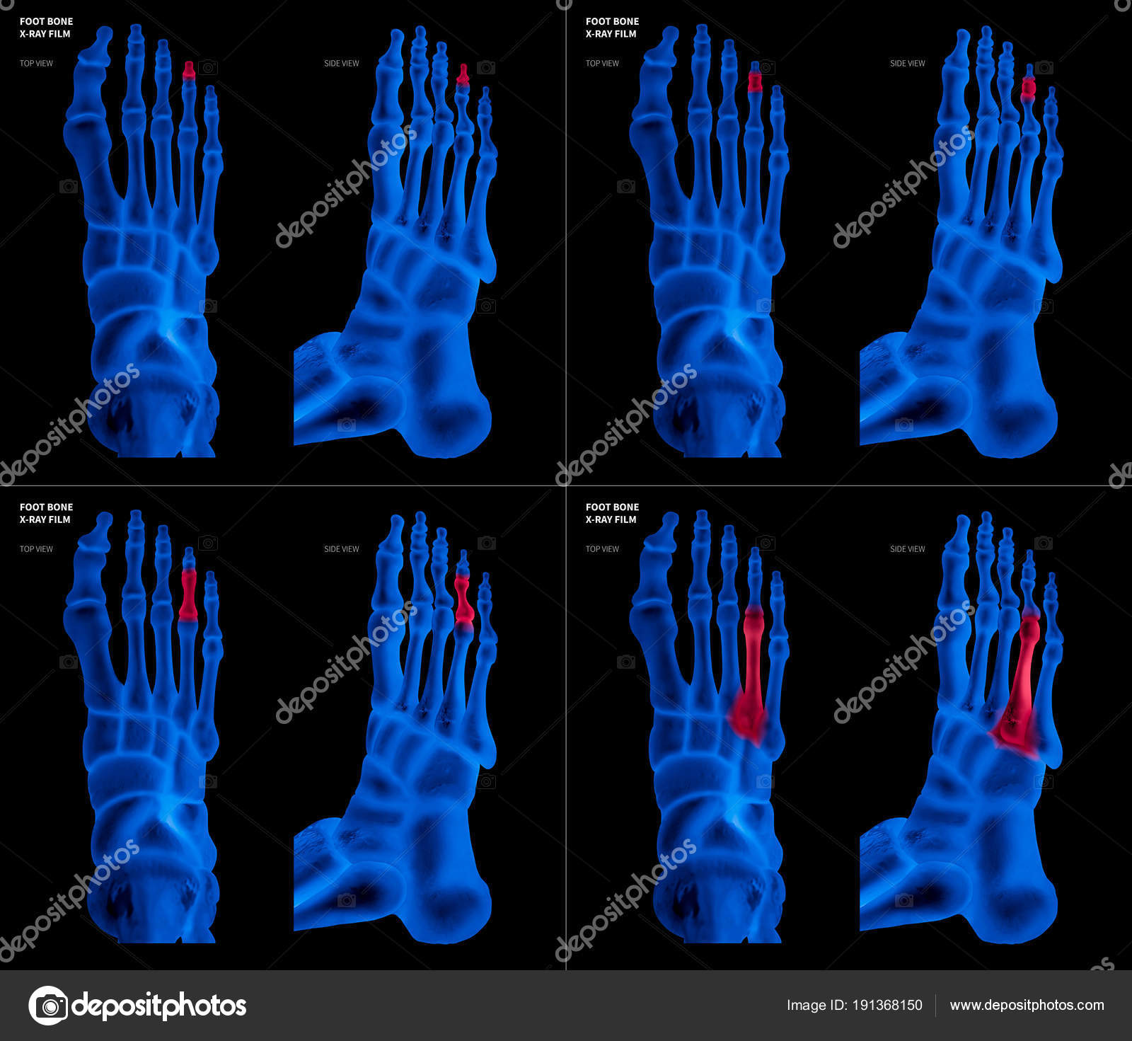 X-ray blue film collection of Ring toe foot bone with red highlights ...