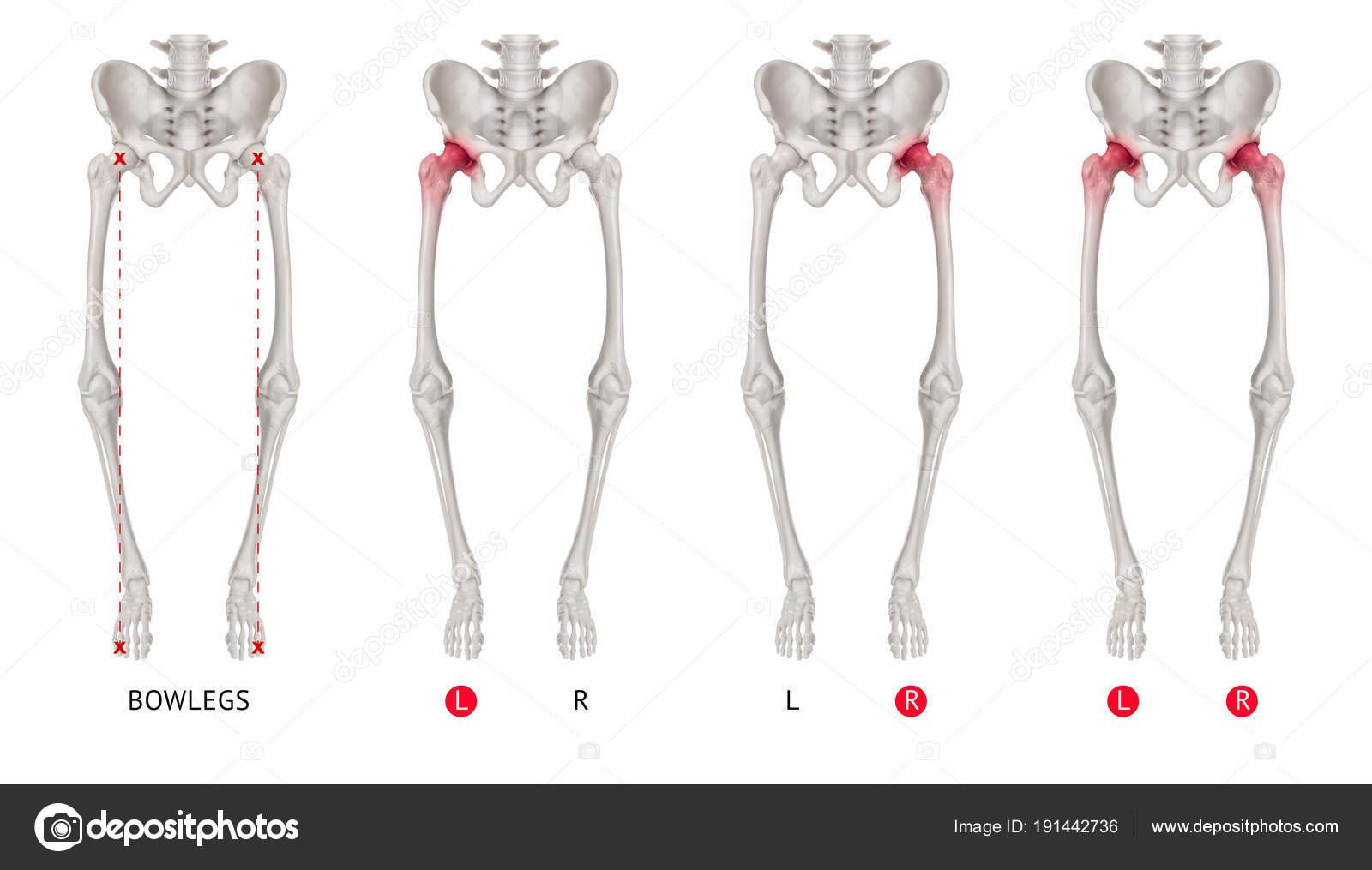 Alineamiento Varus de la pierna o piernas arqueadas colección de ...