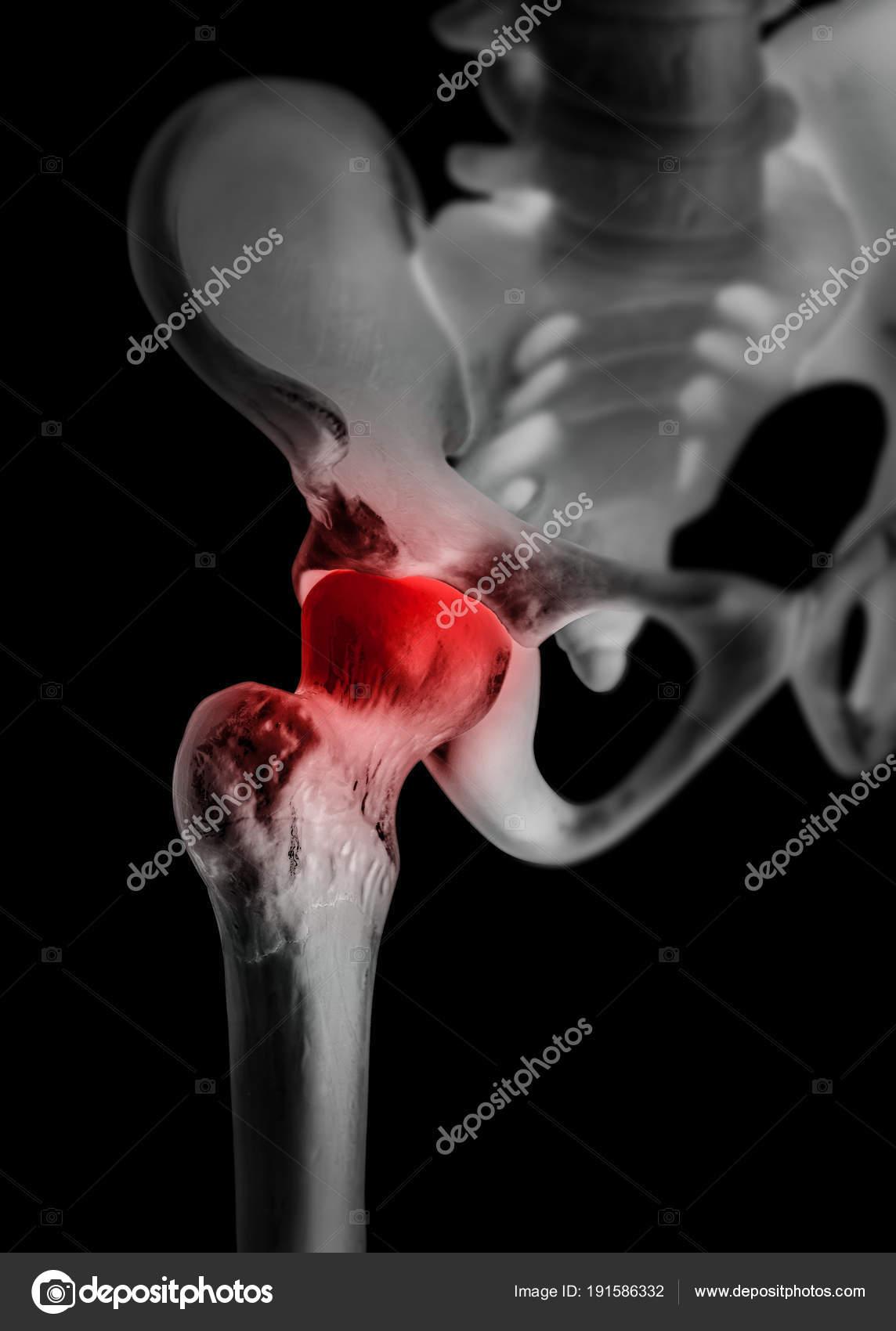 Menschliche Hüftgelenk mit rot markieren im Kommandobereich/Schmerz ...