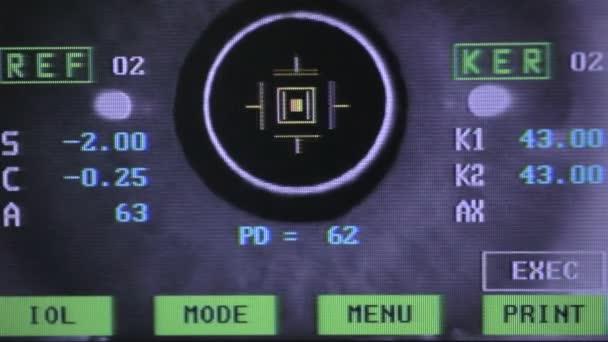 Modern orvosi bemutatás-val szem-látás-ellenőrzés során a képernyőn. Közelről.