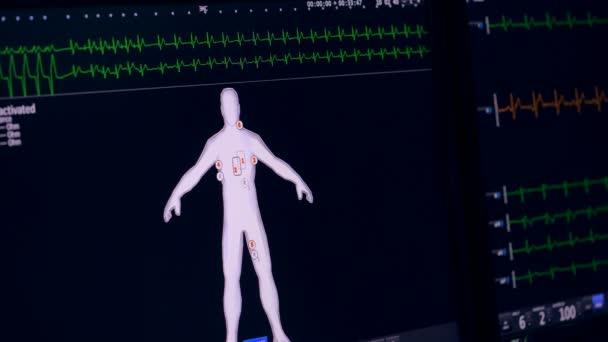 EKG, kardiogram údaje na displeji