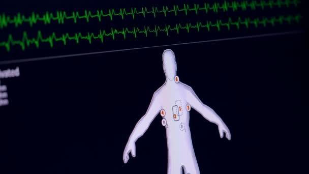 Pacientský monitor zobrazuje vitální funkce. EKG, kardiogram koncepce