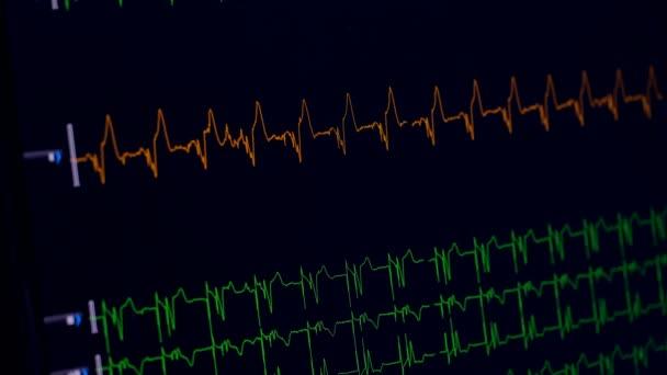 Zdravotní srdeční monitor měření EKG