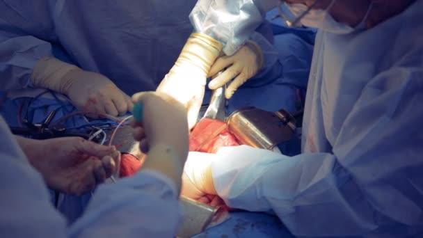 des chirurgischen Teams, das den Chirurgen unterstützt, der den Patienten im Krankenhaussaal operiert. medizinisches Chirurgenteam während der Operation. Hände