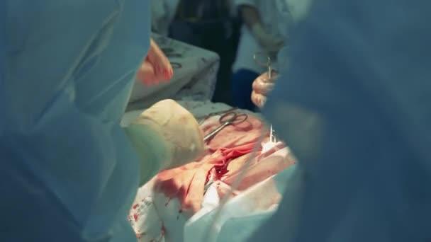 Chirurgický proces s lékaři ošetřující ránu