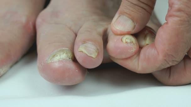 Trattamento di peeling di unghie di un piatto di unghia