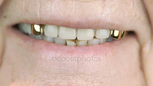 80-jährige Frau lächelt mit falschen Zähnen