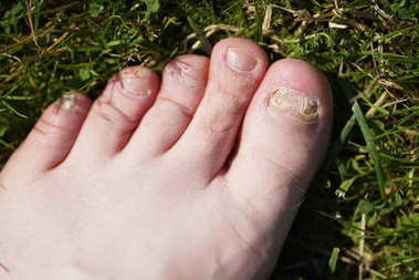 Onychomycosis. Fungal infection of nails of feet