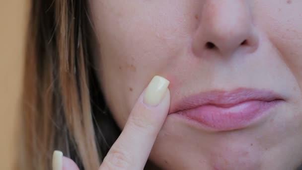junge Frau kratzt sich Blase in der Nähe des Mundes