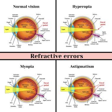 Refractive errors eyeball: hyperopia, myopia, astigmatism.
