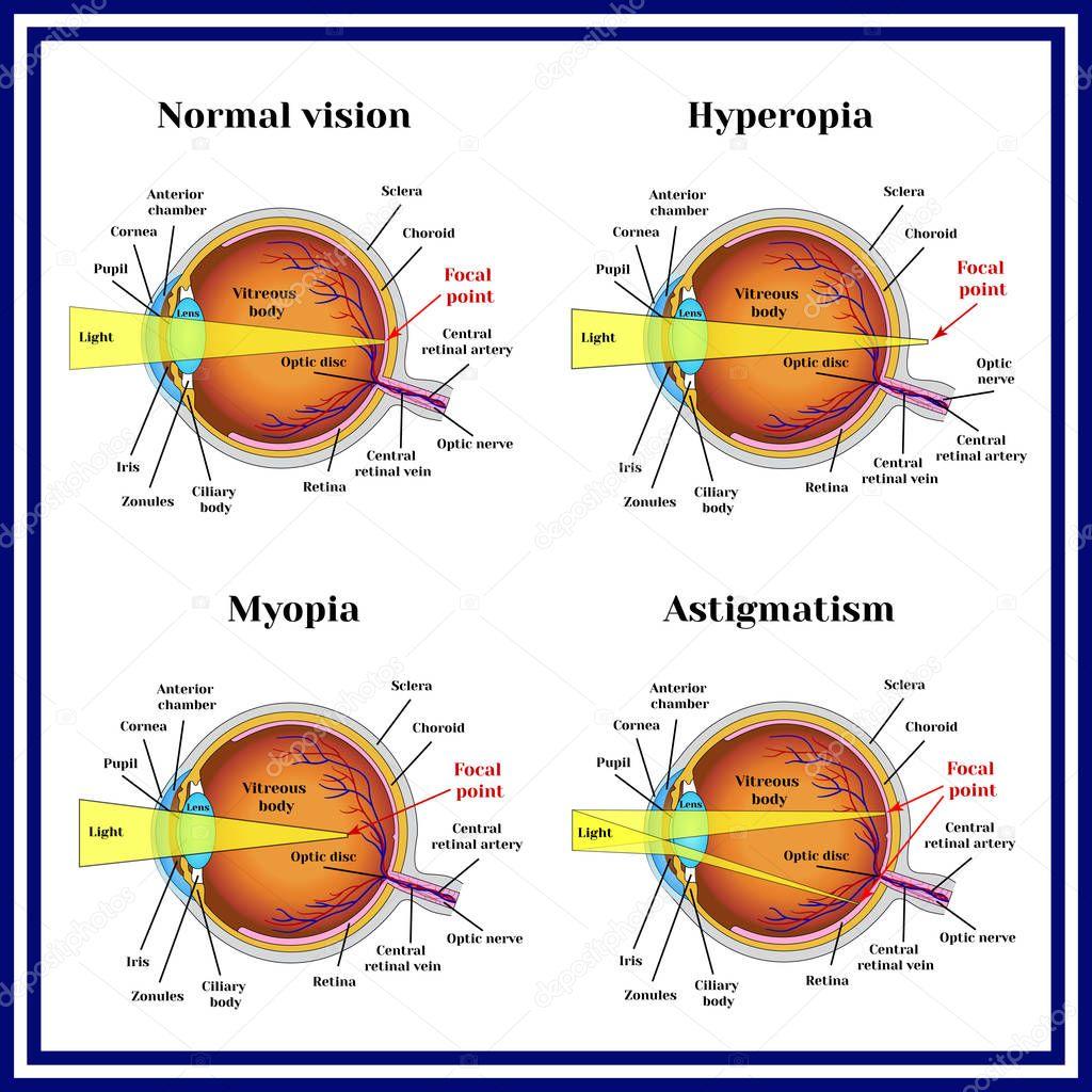 Asztigmatizmus és hyperopia