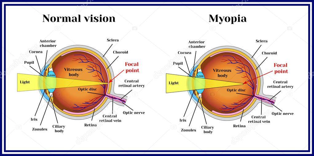 Erros De Refra 231 227 O Ocular Miopia Vetores De Stock 169 Mrs