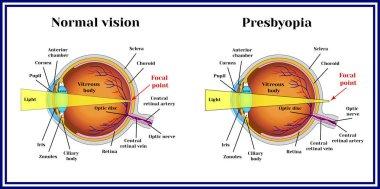 Refractive errors eyeball. Presbyopia.