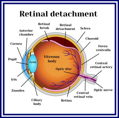 Retinal detachment. Disease.