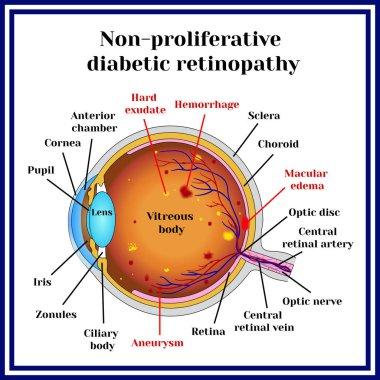 Types of diabetic retinopathy