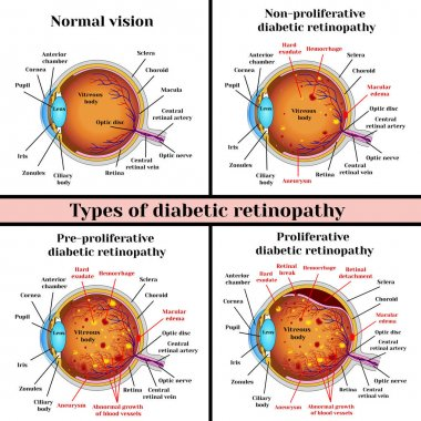 Types of diabetic retinopathy