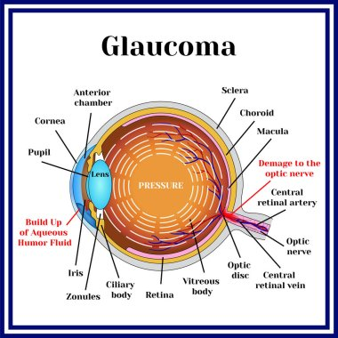 Normal vision. Glaucoma.