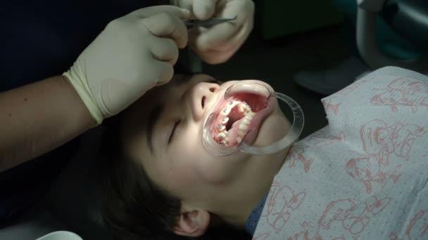 Eine kieferorthopädische Behandlung. Zähne mit Zahnspangen. Korrektur zu beißen. Mit offenem Mund Teenager liegen in den Behandlungsstuhl während der Kieferorthopäde misst die Klammern an den Zähnen. HD