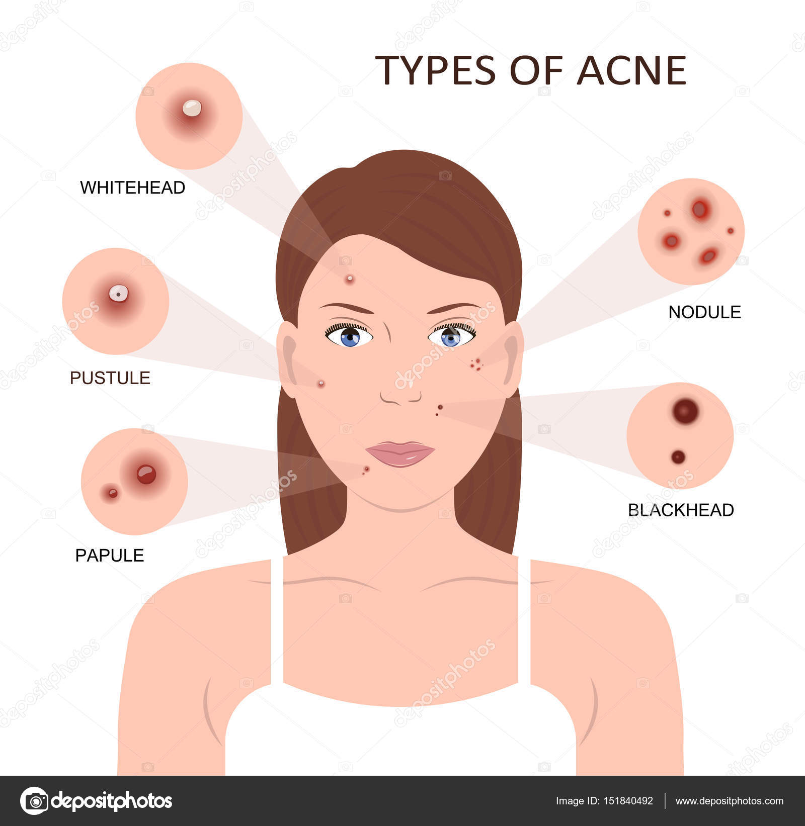 Types of acne. Woman with Pimples — Stock Vector © fancy.tapis.gmail ...