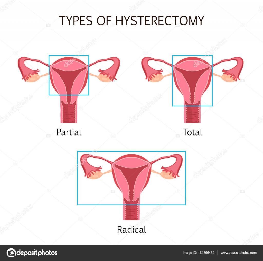 Tipos de histerectomía — Vector de stock © fancy.tapis.gmail.com ...