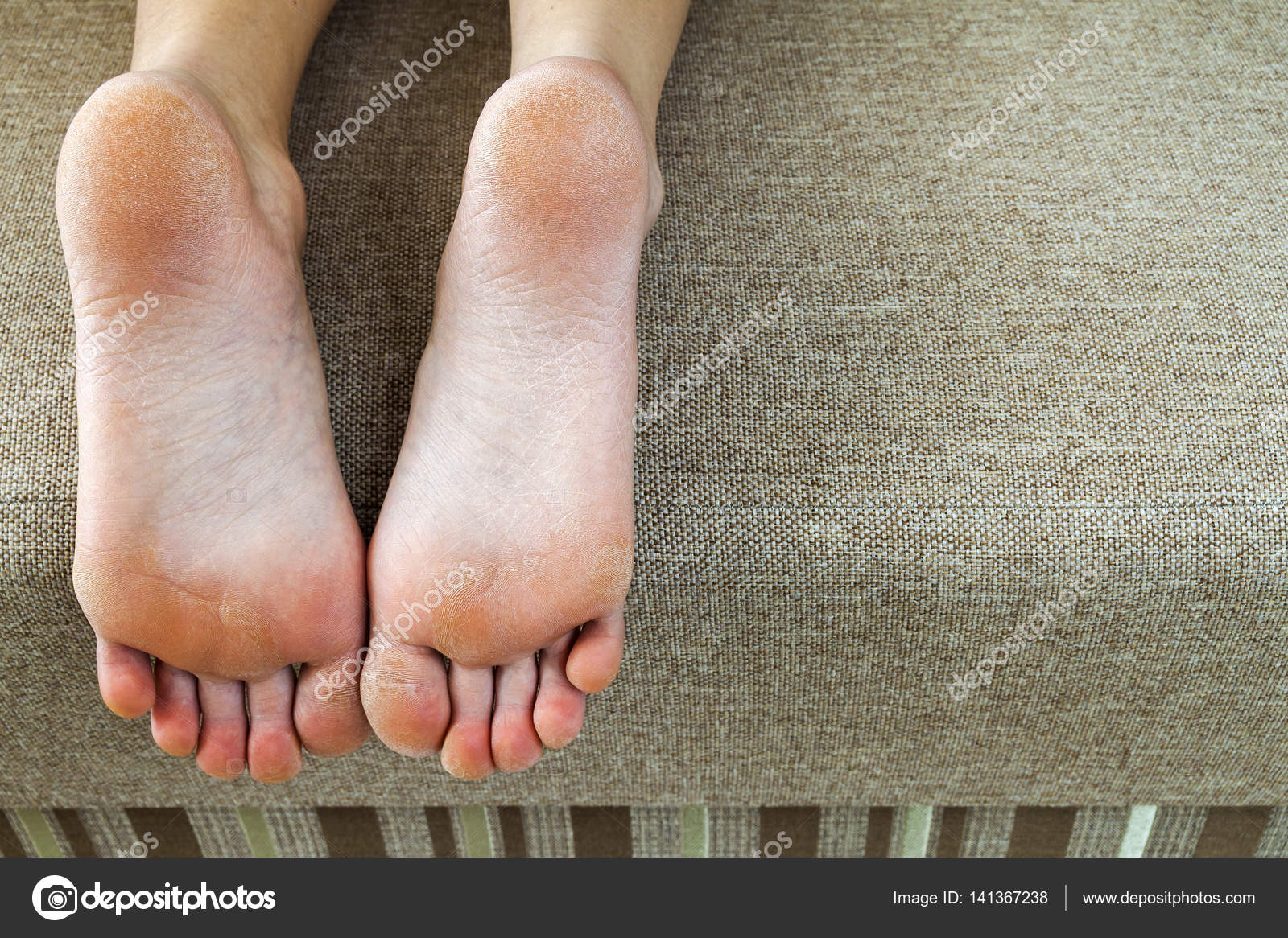 Dry cracked skin of woman feet in bed. Foot treatment. — Stock Photo ...