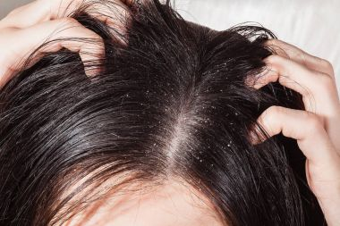 Dander that causes itching scalp