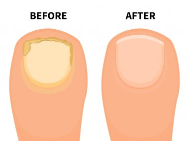 Vector toe nail before and after fungal disease