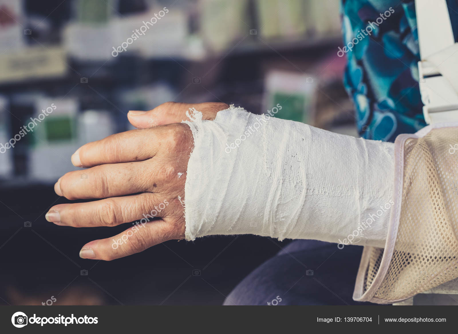 A broken wrist or crack in hand bones. — Stock Photo © coffeekai ...
