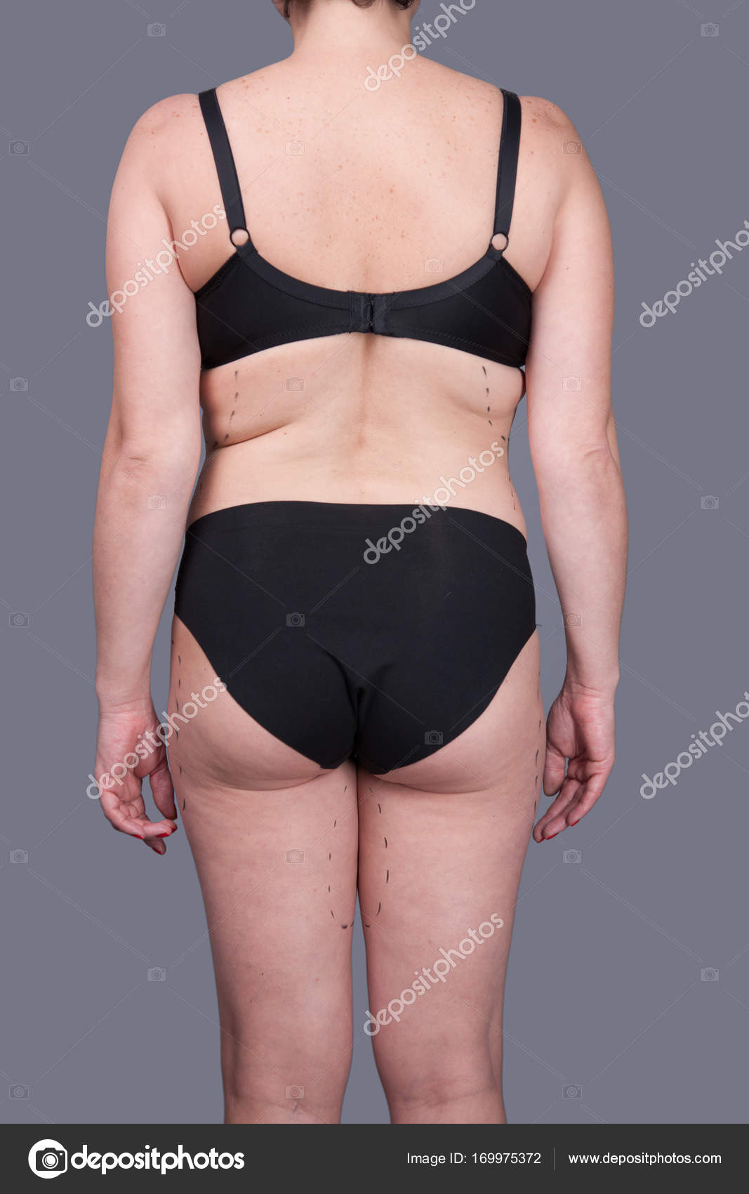 5cd22839ea Woman in underwear with marks for plastic surgery — Stock Photo ...